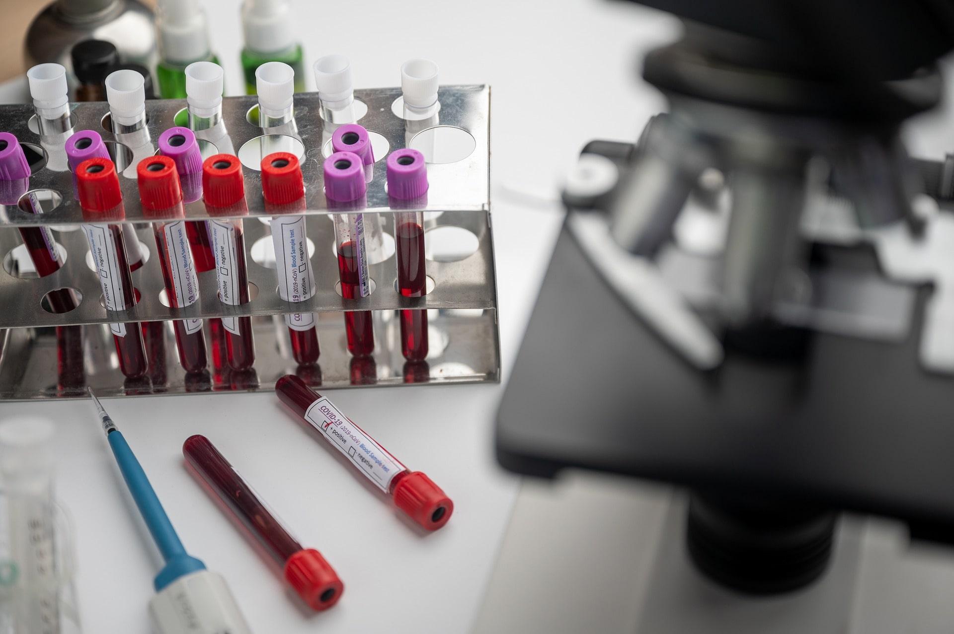 La distribution internationale des vaccins COVID-19